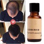 haarwachstum LuckyFine haarwachstum wesen flüssigkeit chinesische kräutermedizin Haarwuchsmittel pflanzliche schnell haarwuchs 30 ml